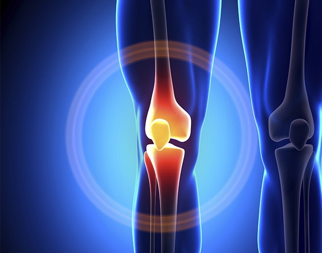 orthopedics-knee-joint-pain-relief-replacement/